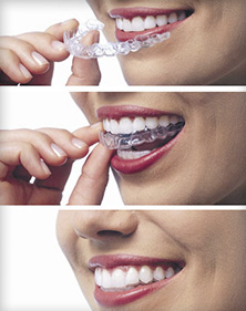 Patient wearing nearly invisible Invisalign clear braces.