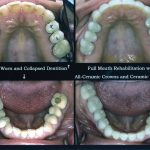 crowns-veneers-1