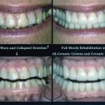 crowns-veneers-2