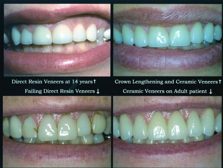 Before and after photos from an Acworth teeth veneers patient.