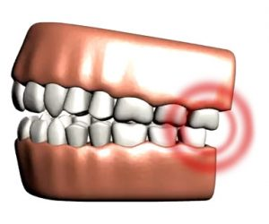 TMJD treatment can help to give patients jaw pain and headache relief.