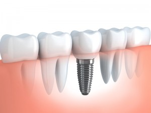 Teeth implants are surgically implanted into the jaw bone, where they fuse with the jaw itself.